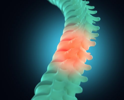 Spinal injury or pain